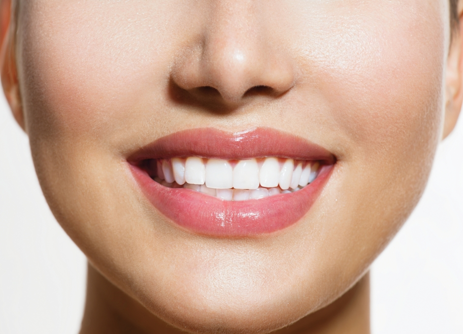 Teeth-Whitening-Irvine-2